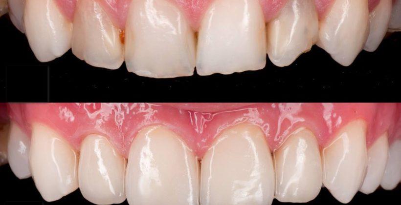 ציפוי שיניים – כל מה שרצית לדעת