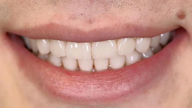 ציפוי שיניים אחרי