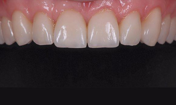 ציפוי שיניים למינייט- איך מגיעים לחיוך מושלם?!