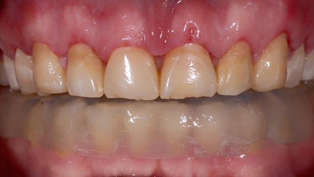 Before-שיניים